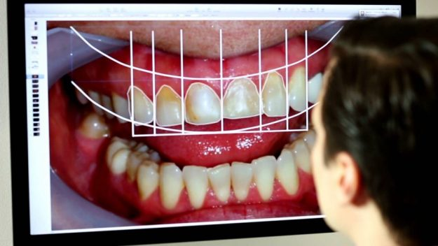 Digital Smile Design What Is It Jersey City Malosmileusa